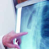 Los ciudadanos con síntomas de cáncer tardan más tiempo en acudir al médico